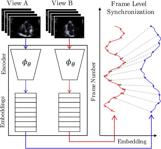Figure 1 for Echo-SyncNet: Self-supervised Cardiac View Synchronization in Echocardiography