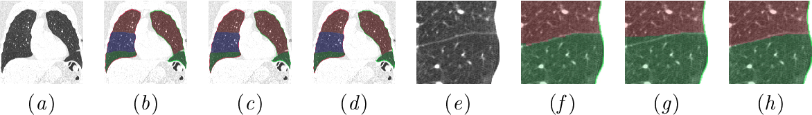 Figure 3 for Automatic segmentation of the pulmonary lobes with a 3D u-net and optimized loss function