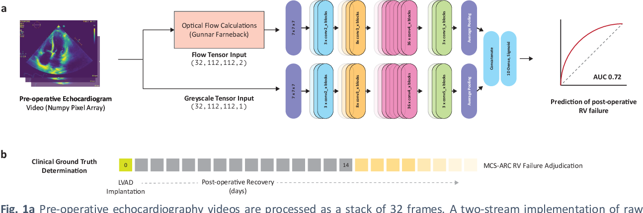 Figure 1 for Predicting post-operative right ventricular failure using video-based deep learning