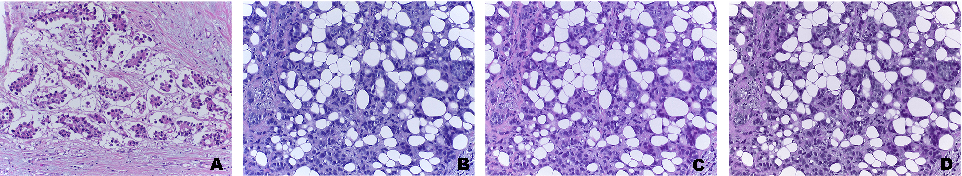 Figure 2 for Deep Learning Framework for Multi-class Breast Cancer Histology Image Classification
