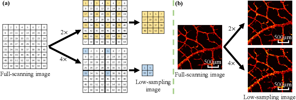 Figure 1 for Photoacoustic Microscopy with Sparse Data Enabled by Convolutional Neural Networks for Fast Imaging