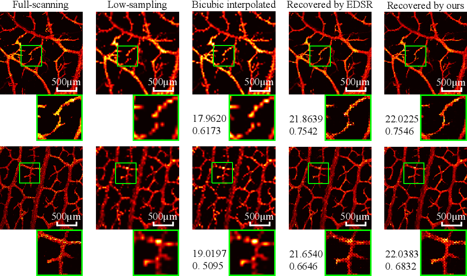 Figure 4 for Photoacoustic Microscopy with Sparse Data Enabled by Convolutional Neural Networks for Fast Imaging