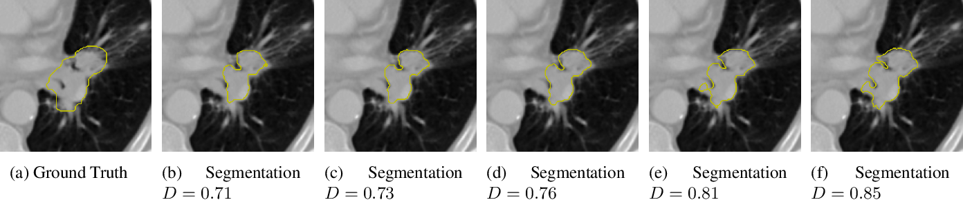 Figure 1 for Radiomic Feature Stability Analysis based on Probabilistic Segmentations