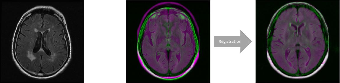 Figure 1 for FlowReg: Fast Deformable Unsupervised Medical Image Registration using Optical Flow