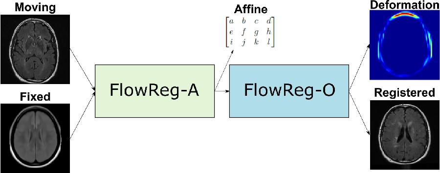 Figure 3 for FlowReg: Fast Deformable Unsupervised Medical Image Registration using Optical Flow