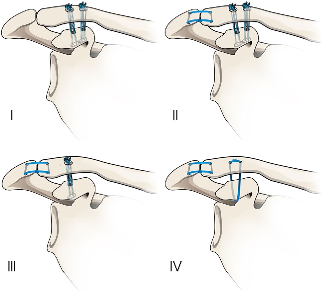 Acromioclavicular Joint Dislocations Coracoclavicular