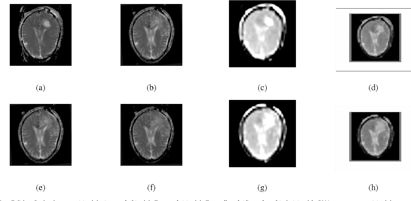 Brain Tumor Growth Analysis Using a Dimensionality Reduction