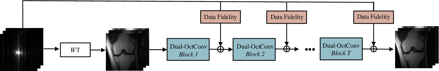 Figure 3 for DONet: Dual-Octave Network for Fast MR Image Reconstruction