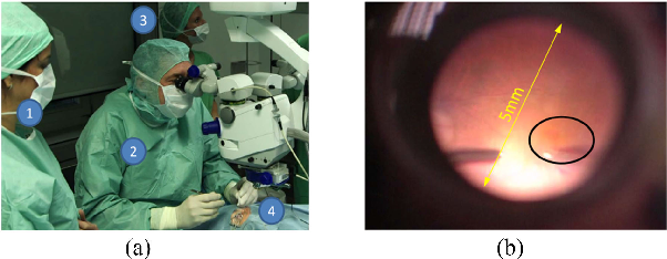Figure 1 for Towards Robotic Eye Surgery: Marker-free, Online Hand-eye Calibration using Optical Coherence Tomography Images