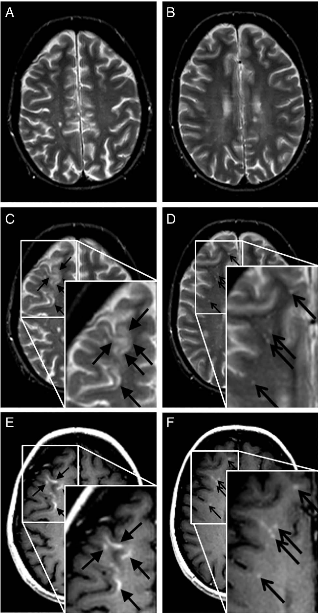 Figure 2 Reference axial T2-weighted images (A and B) and follow-up axial T2-weighted (C and D) images, and contrast enhanced T1-weighted (E and F) images of a natalizumab-treated patient with MS from our study. The follow-up MRI shows a new PML lesion in the juxtacortical white matter and cortical grey matter of the right frontal lobe, which enhances after gadolinium administration (C and E, closed arrowheads). Punctate T2 hyperintense lesions are visible with a rather perivascular spread (D, open arrowheads), and show a punctate enhancement on T1-weighted images after gadolinium enhancement (F, open arrowheads).