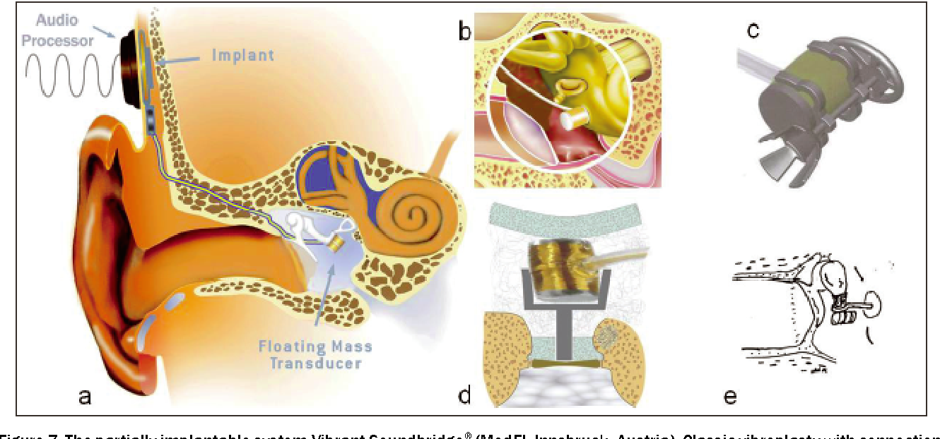 Passive and active middle ear implants - Semantic Scholar