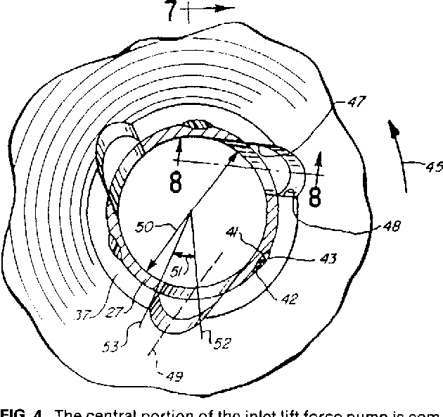 Figure 4 From Findlay Implantable Two Stage Centrifugal Pump