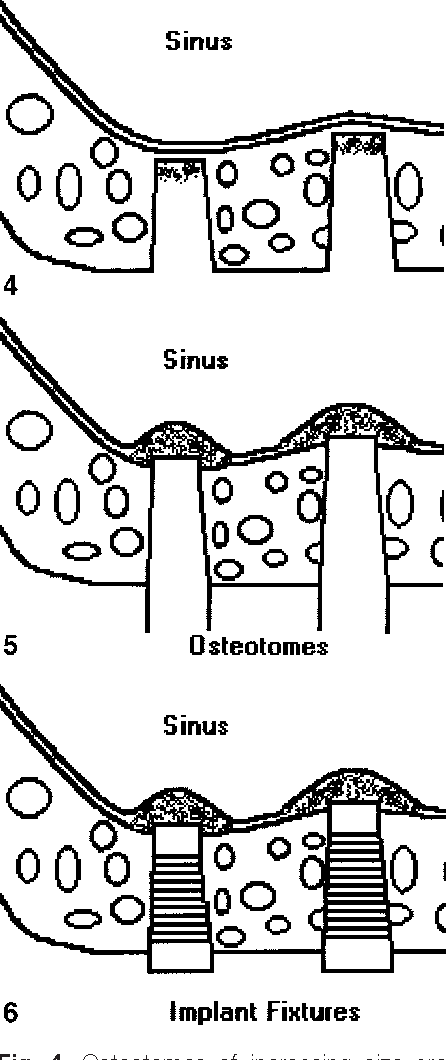 Maxillary sinus floor elevation: review of anatomy and two ...