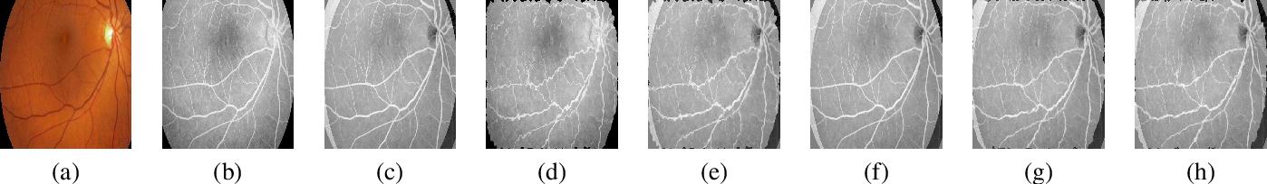 Figure 3 for Elastic Registration of Medical Images With GANs