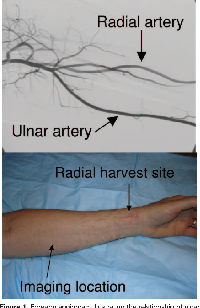 Figure 1 From Flow Induced Arterial Remodeling Relates To