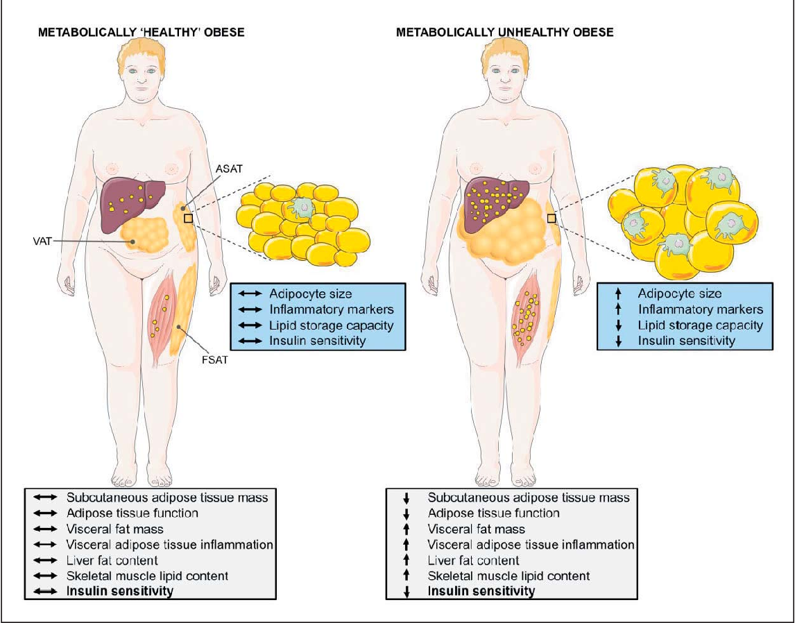 The Metabolic Phenotype in Obesity: Fat Mass, Body Fat Distribution ...