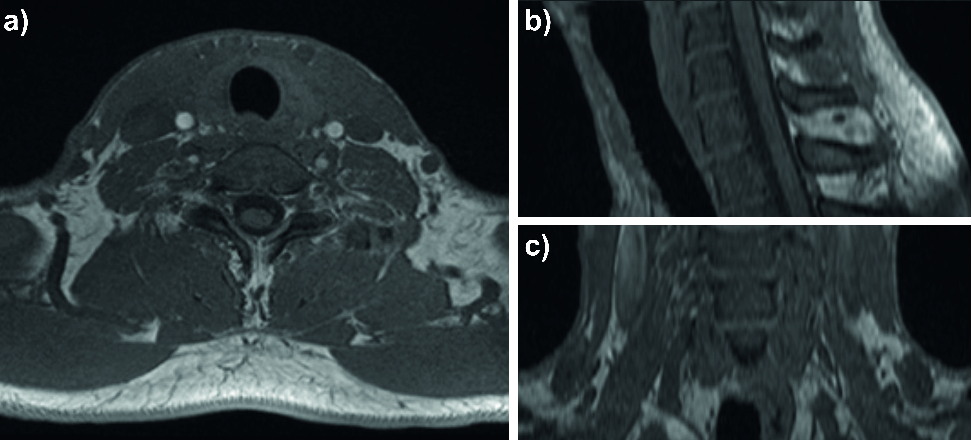 Figure 1 for Tracked 3D Ultrasound and Deep Neural Network-based Thyroid Segmentation reduce Interobserver Variability in Thyroid Volumetry