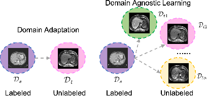 Figure 1 for Domain-Agnostic Learning with Anatomy-Consistent Embedding for Cross-Modality Liver Segmentation