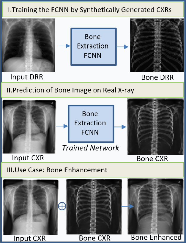 Figure 1 for Bone Structures Extraction and Enhancement in Chest Radiographs via CNN Trained on Synthetic Data