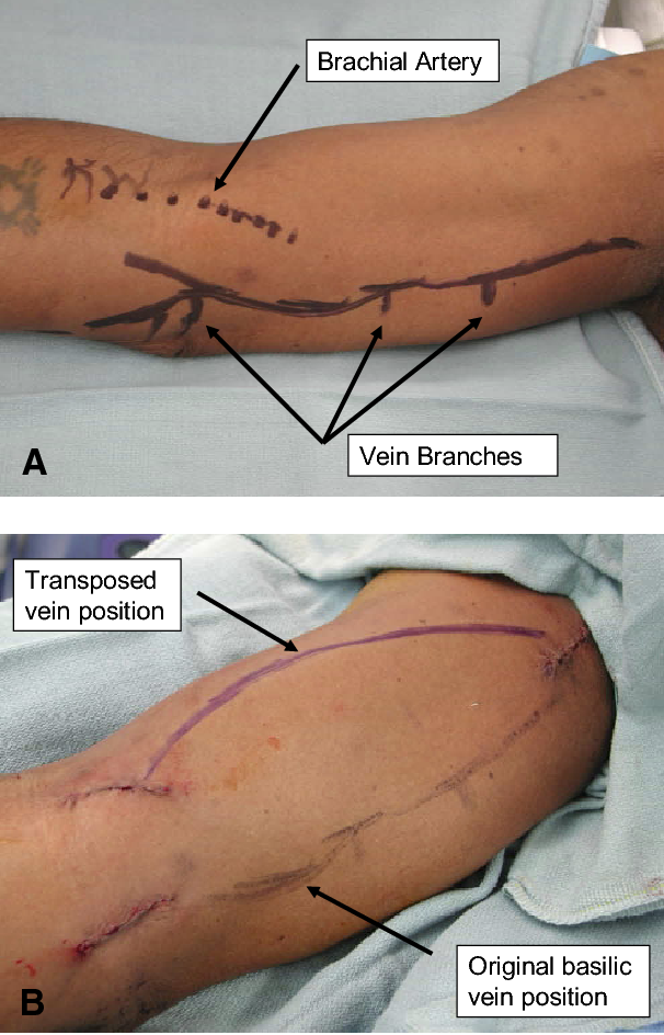 Figure 2 From Endoscopic Basilic Vein Transposition For Hemodialysis