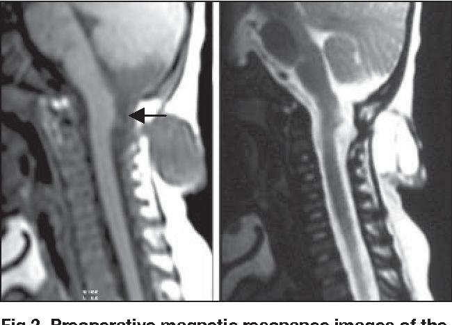 PDF] Cervical meningocele with tethered cervical cord in a