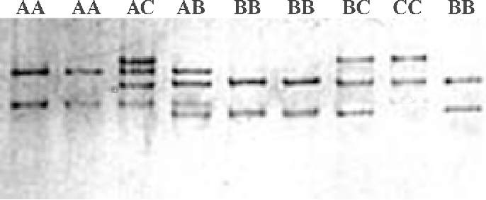 Figure 4. Polymerase chain reaction single-strand conformation polymorphisms pattern for the liver fatty acid-binding protein gene.