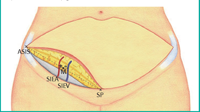 The Superficial Inferior Epigastric Artery Flap And Its Relevant