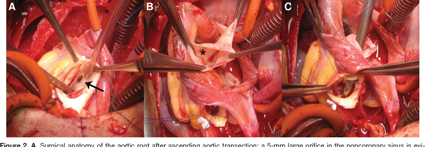 Figure 2 from Hot-air balloon explosion in the heart. - Semantic Scholar