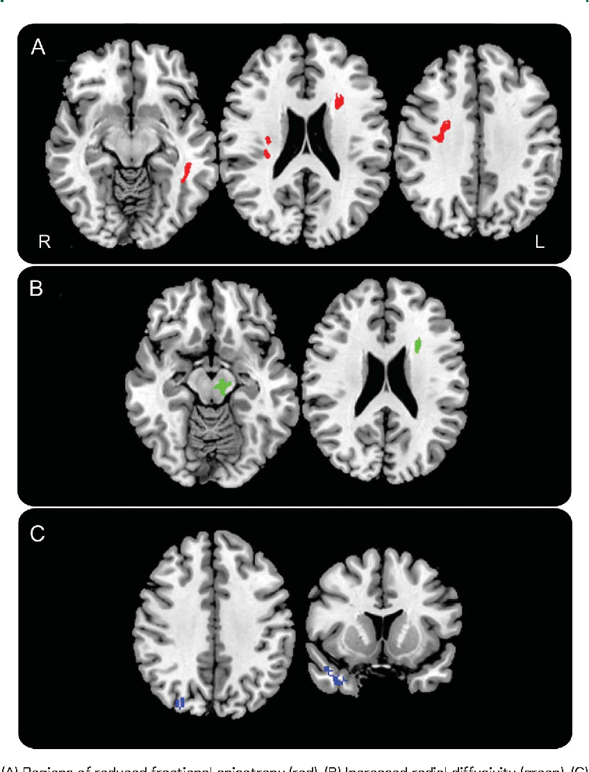 Figure 2 Increased white and gray matter degeneration in direct comparison of patients with behavioral-variant frontotemporal dementia who are