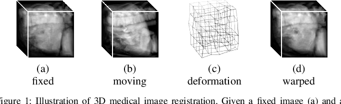 Figure 1 for Unsupervised 3D End-to-End Medical Image Registration with Volume Tweening Network