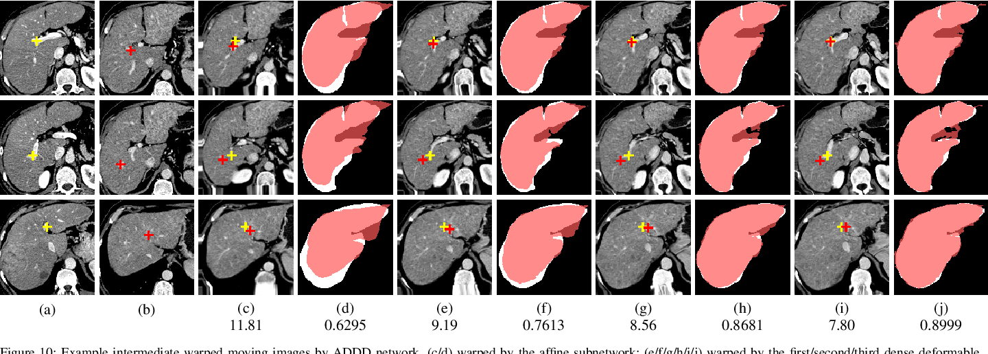 Figure 2 for Unsupervised 3D End-to-End Medical Image Registration with Volume Tweening Network