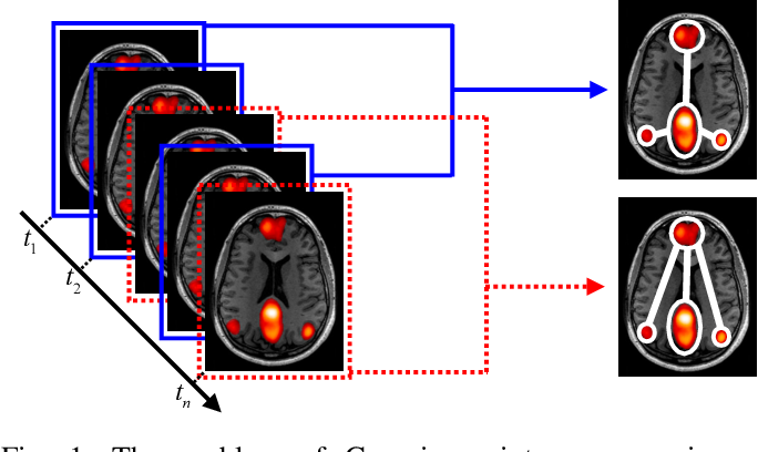 Figure 1 for Gaussian Mixture Graphical Lasso with Application to Edge Detection in Brain Networks
