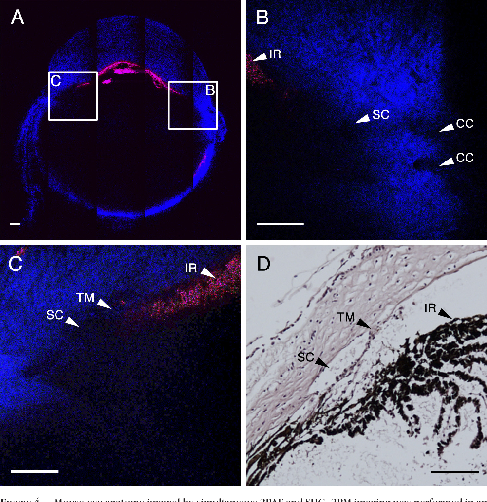 Figure 4 from Two-photon imaging of the mouse eye. - Semantic Scholar