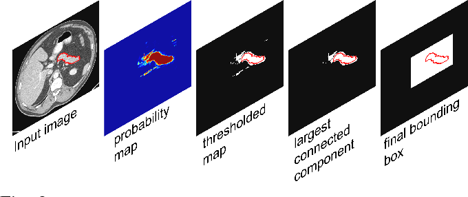 Figure 3 for Spatial Aggregation of Holistically-Nested Convolutional Neural Networks for Automated Pancreas Localization and Segmentation