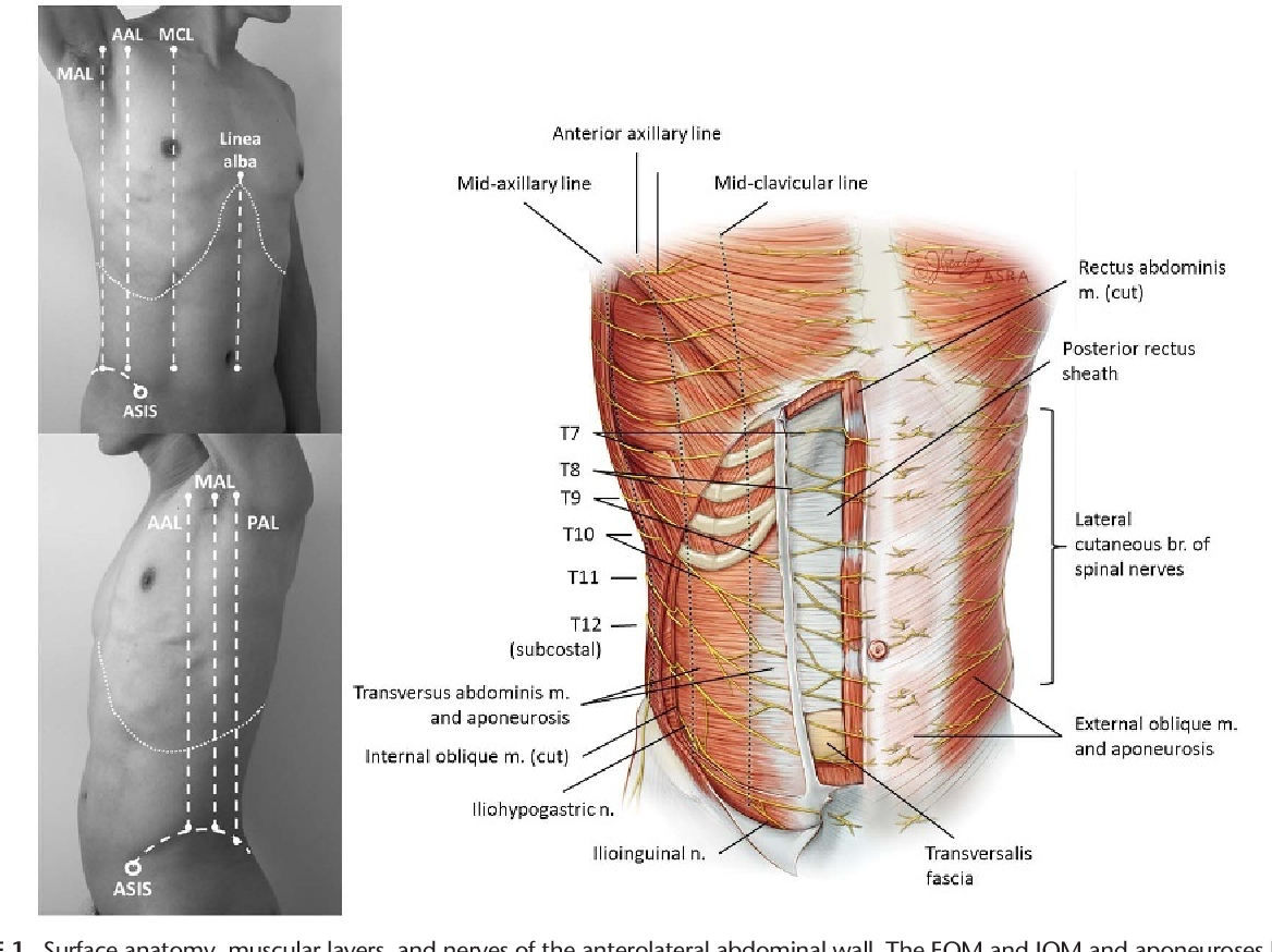 Essentials of Our Current Understanding: Abdominal Wall Blocks ...
