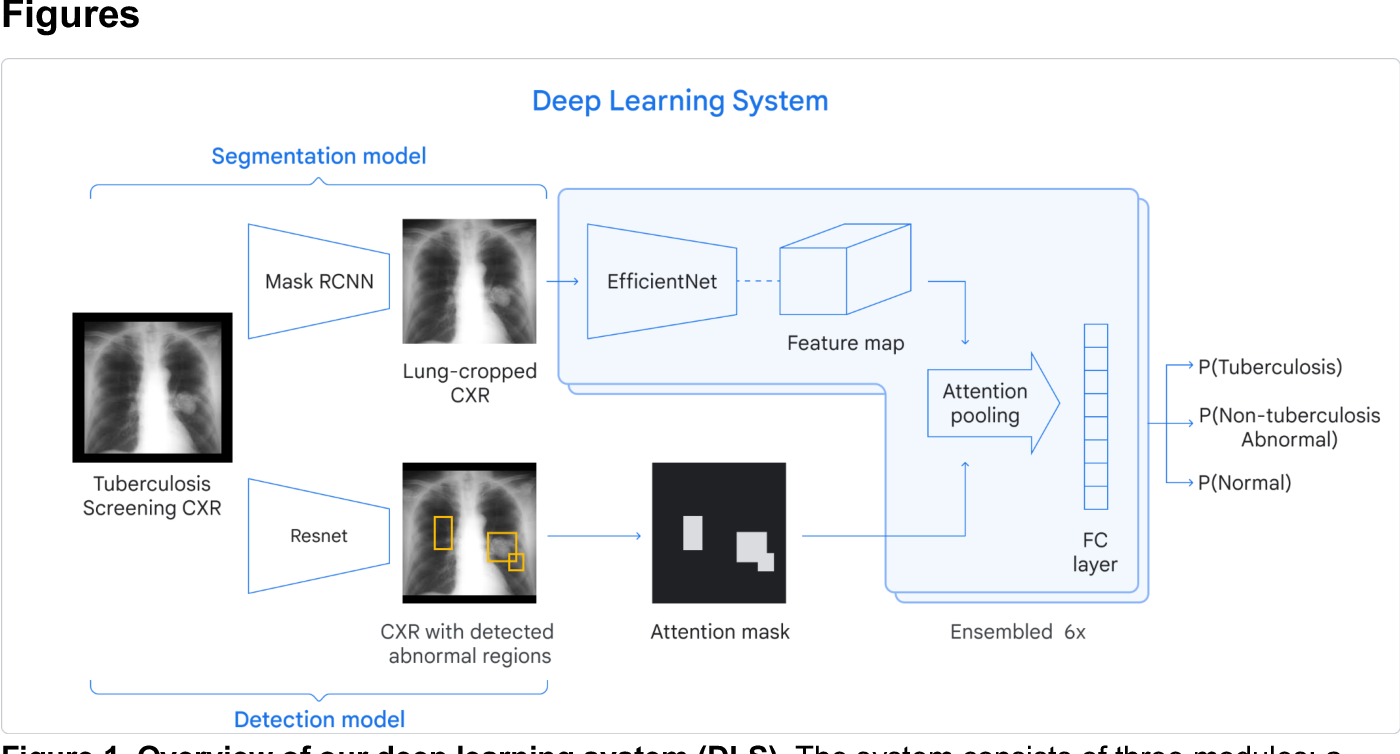 Figure 1 for Deep learning for detecting pulmonary tuberculosis via chest radiography: an international study across 10 countries