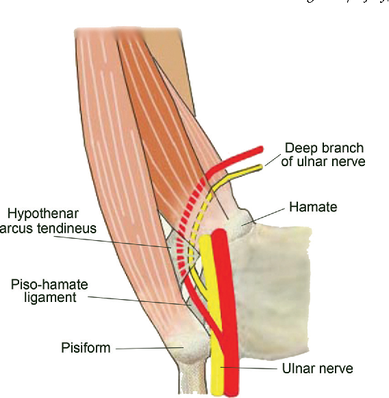 Ulnar Nerve Deep Branch Compression By A Ganglion A Review Of Nine
