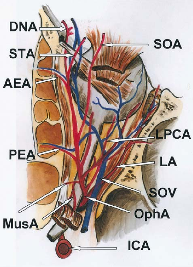 Figure 4 from Anatomy of the orbit and its surgical approach ...