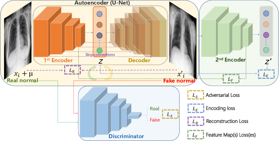 Figure 1 for Abnormal Chest X-ray Identification With Generative Adversarial One-Class Classifier