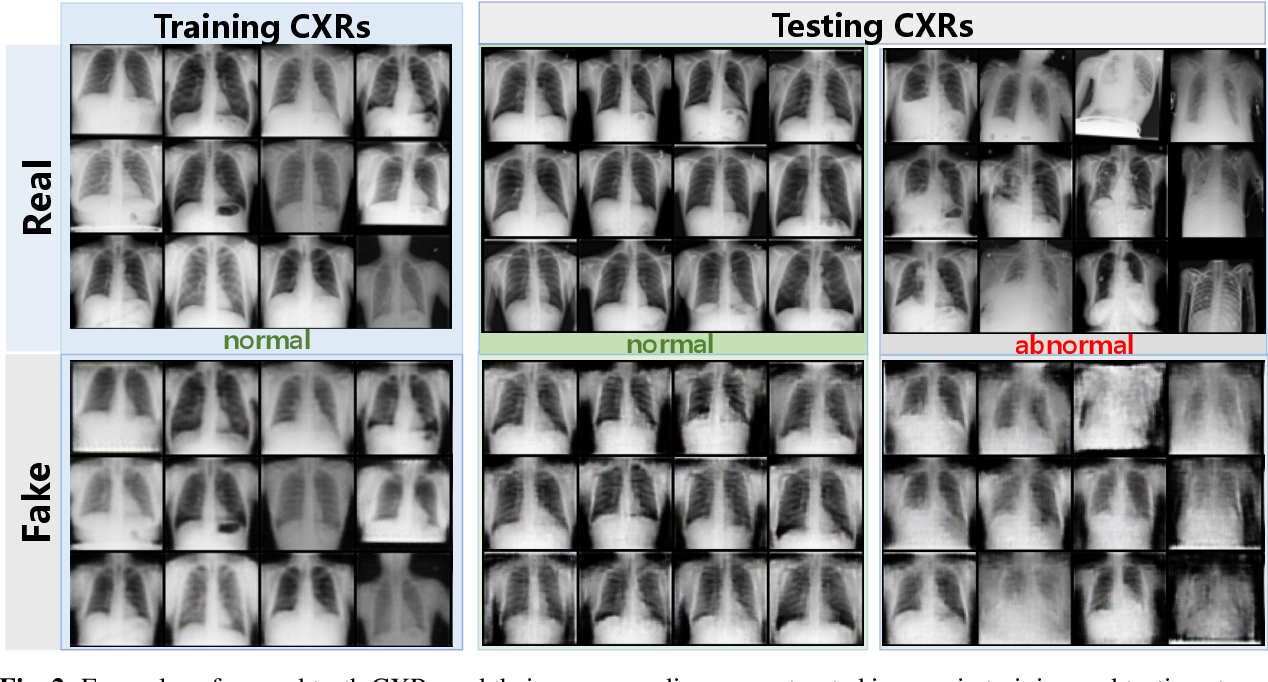 Figure 3 for Abnormal Chest X-ray Identification With Generative Adversarial One-Class Classifier
