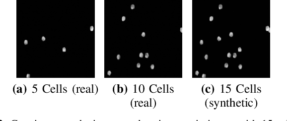 Figure 2 for Classification Beats Regression: Counting of Cells from Greyscale Microscopic Images based on Annotation-free Training Samples