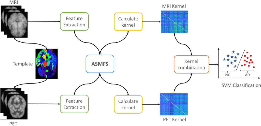 Figure 1 for ASMFS: Adaptive-Similarity-based Multi-modality Feature Selection for Classification of Alzheimer's Disease