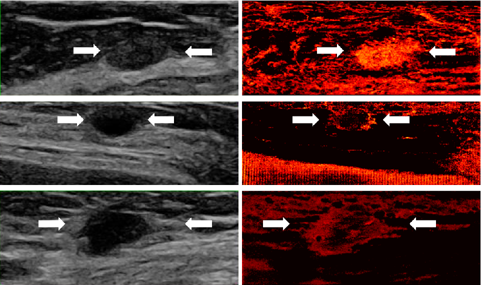 Figure 2 for Learned super resolution ultrasound for improved breast lesion characterization