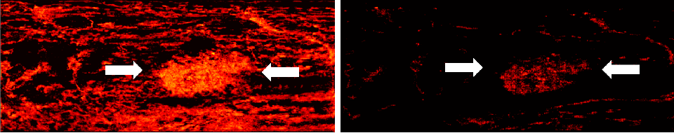 Figure 3 for Learned super resolution ultrasound for improved breast lesion characterization