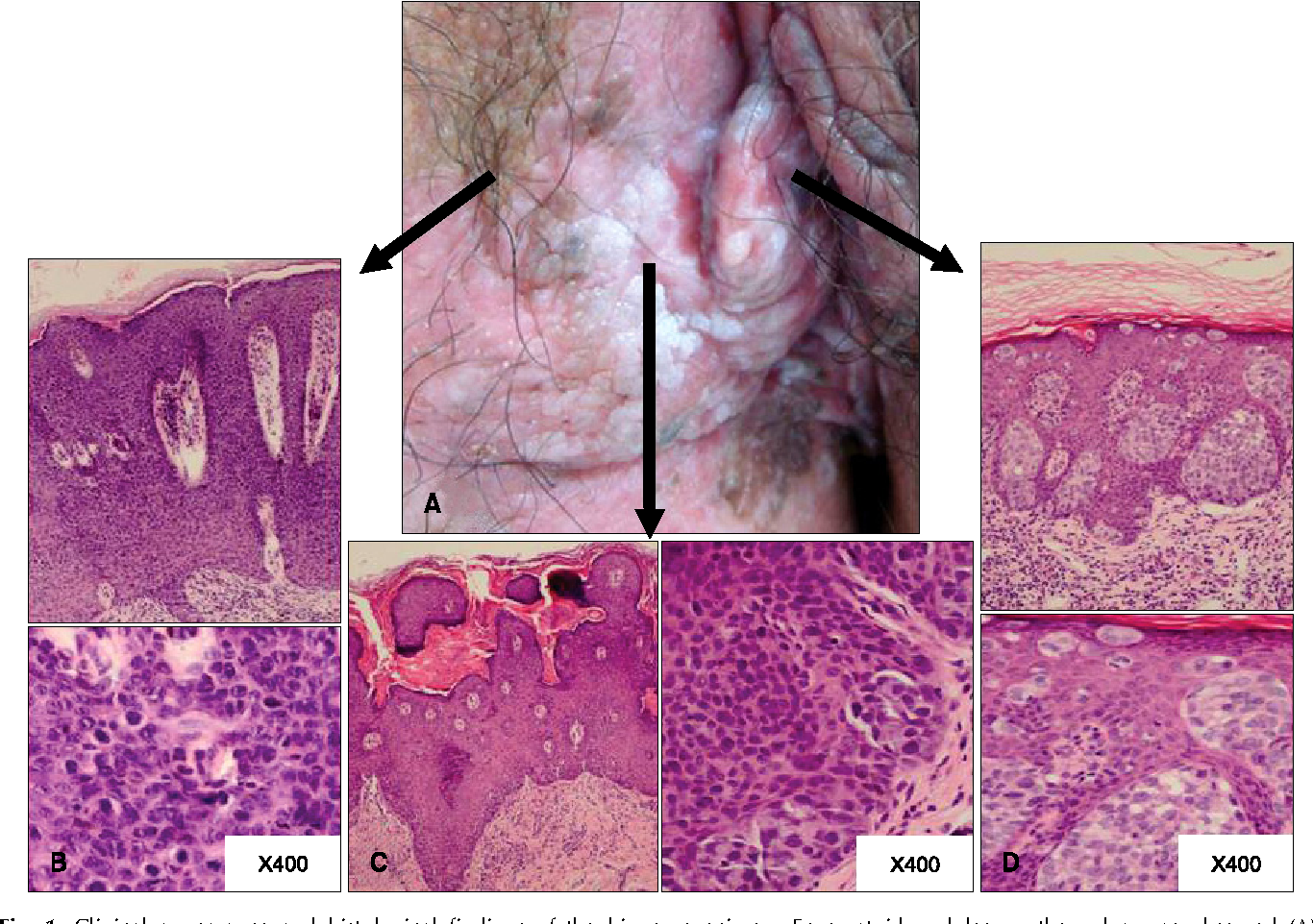 Pagets disease of the vulva picture picture