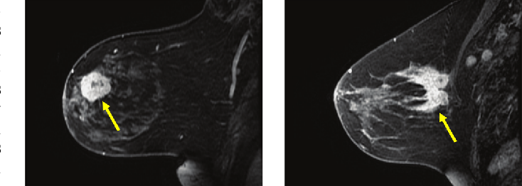 Automated Breast Tumor Segmentation in DCE-MRI Using Deep Learning