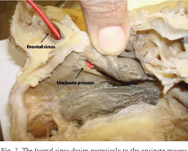 Surgical Anatomy Of The Frontal Sinus Outflow Pathway A Cadaveric