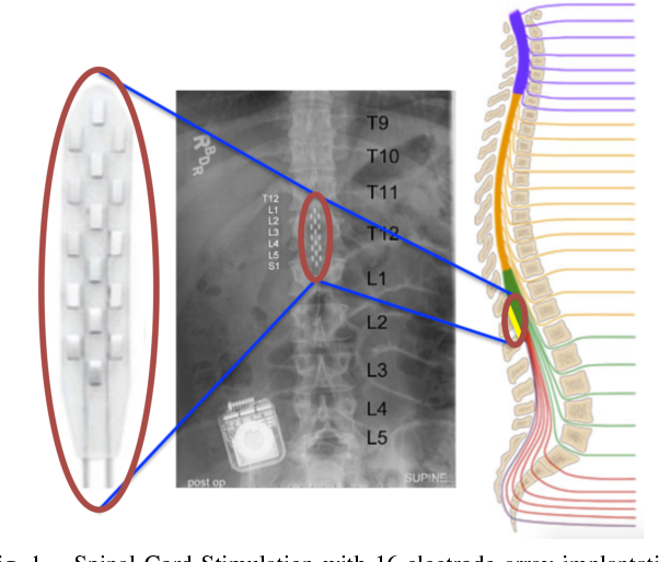 Figure 1 for Quantifying Performance of Bipedal Standing with Multi-channel EMG