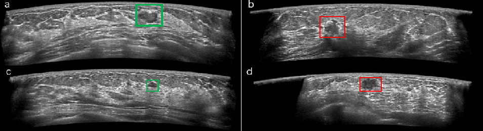 Figure 1 for Computer-aided Tumor Diagnosis in Automated Breast Ultrasound using 3D Detection Network