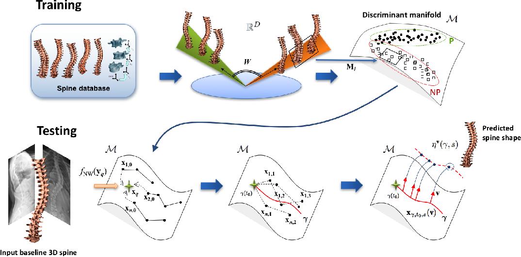 Figure 2 for 3D Morphology Prediction of Progressive Spinal Deformities from Probabilistic Modeling of Discriminant Manifolds
